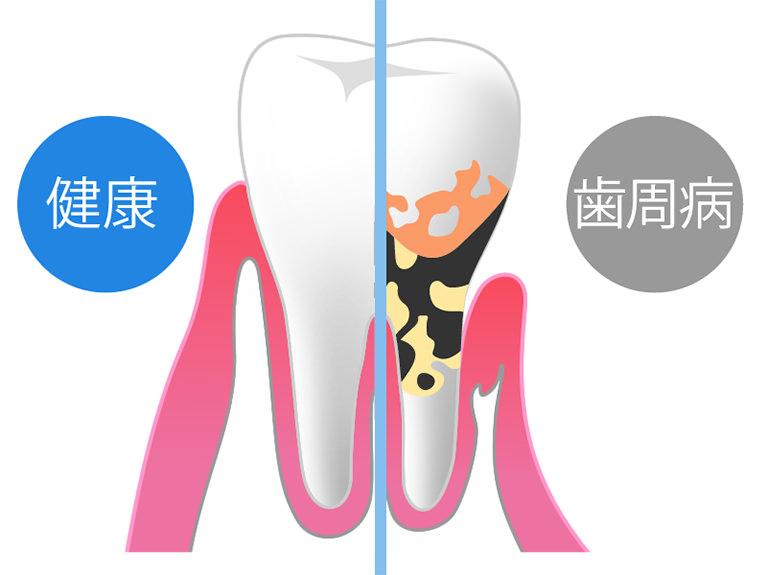 歯の土台となる歯ぐきが炎症を起こす
